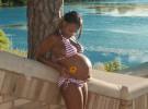 La falta de vitamina D en el embarazo eleva el riesgo de esclerosis múltiple