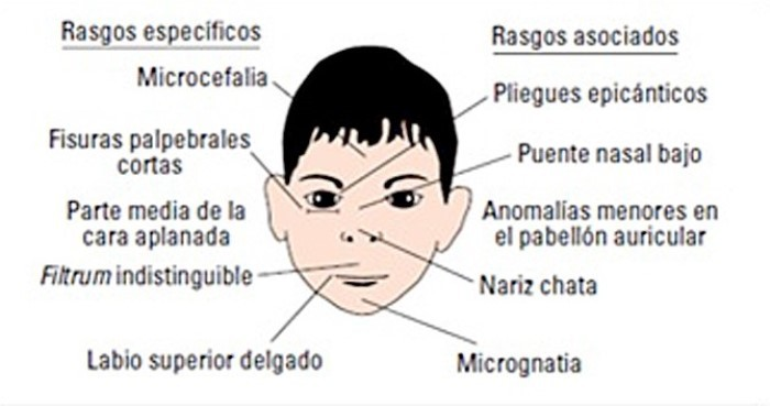 rasgos sindrome alcoholico fetal