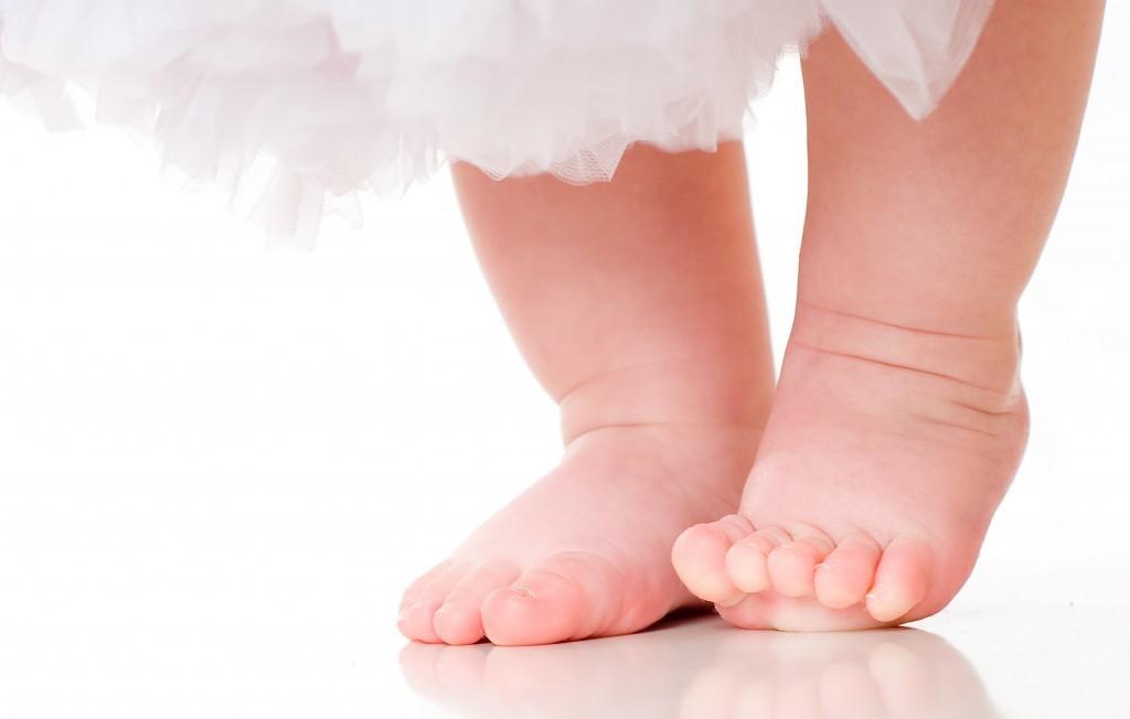 cojera repentina en el bebé