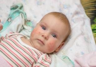 ¿A qué se deben las manchas en la piel del bebé?