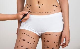 Cirugía estética tras el embarazo