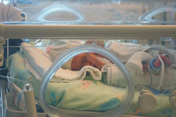 bebés con problemas neurologicos