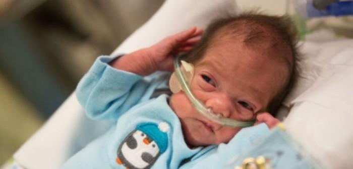 bebé con parálisis cerebral